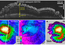 see the image 'Radar Mapping of Icy Layers Under Mars' North Pole'